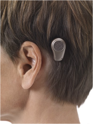 Oticon_Medical_bone_anchored_hearing_aid_sound_processor.png