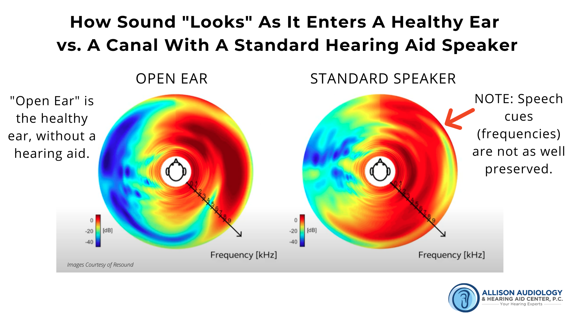 2nd Image of Sound in Healthy Ear vs Standard Speaker B Roll.png