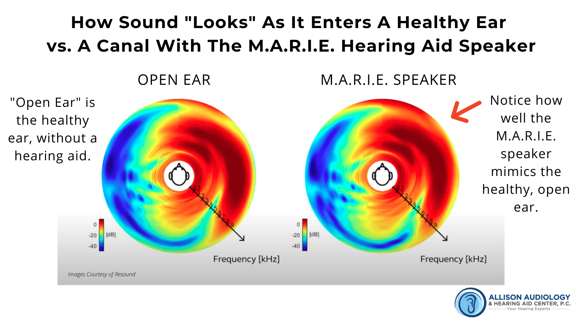 3rd Image of Sound in Healthy Ear vs MARIE Speaker B Roll.png