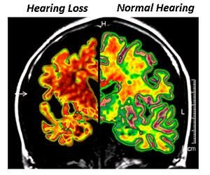 Brain-atrophy-hearing-loss.jpg