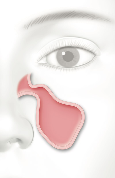 Woman-Sinus.jpg